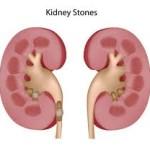 Apa alcalină ionizată și pietrele la rinichi