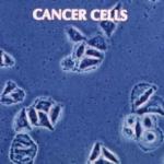 Apa alcalină și prevenția cancerului